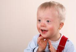 Her yıl 2000 çocuk down sendromlu doğuyor
