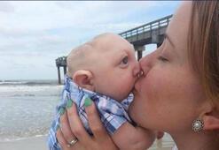 Mucize bebek Jaxon 1 yaşında