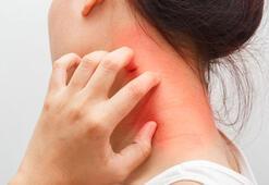 Mantar hastalığı belirtileri ve tedavisi