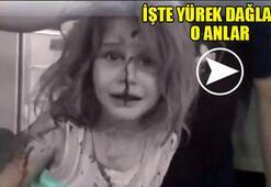 Suriyeli çocuğun yürek yakan dramı