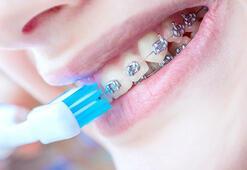 Diş teline dikkat