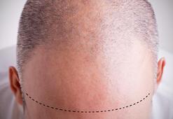 Saç ekimi sonrası dikkat edilmesi gereken 12 şey