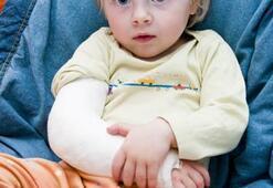 Yazın çocuklarda kırık travmaları artıyor