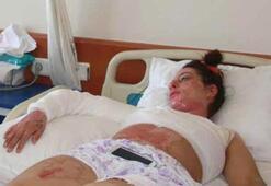 İlk kocası dövdü ikincisi yaktı