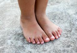 Çocuklarda görülen ayak mantarı tedavisi nasıl olur
