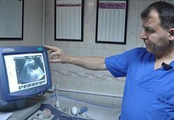 Anne karnındaki bebeğe mucize ameliyat