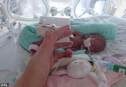 23 haftalık bebek tarihe geçti