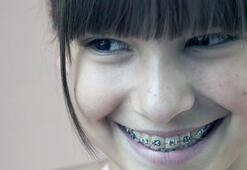 Erken düşen süt dişleri gelişim problemlerine yol açıyor