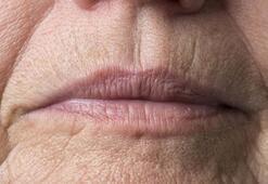 Sigara dudak üstü kırışıklıkların sebebi