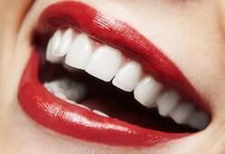 Diş beyazlatmak isteyenler dikkat