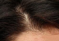 Saç dökülmesinin 13 nedeni