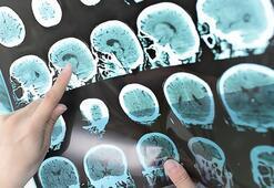 Aşırı stres MS riskini arttıyor