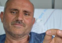 Sırt ağrısı çeken hastanın akciğerinden iğne çıktı