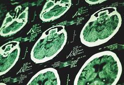MS hastalığının 6 belirtisi
