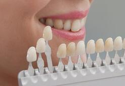 Dişlerim çok sarı diyorsanız beyazlatmak için doğru zaman ne zaman