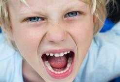 Terlikleri ve duvarları yalayan çocuklara dikkat