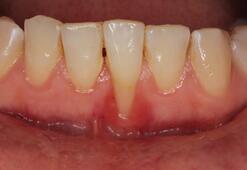 Diş eti çekilmesinde tartışılan yöntem ''şap''