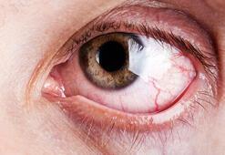 Yazın gözleri tehdit eden 9 etken