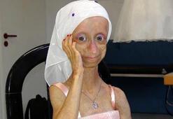 Yaşlanma hastası Gamzeden kötü haber
