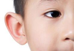 Çocuklarınıza kulak estetiği yaptırmak için geç kalmayın