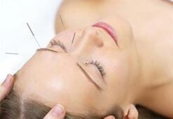 Akupunktur ile 10 yaş gençleşmek ister misiniz