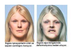 Sigara yüzünüzü bu hale getiriyor