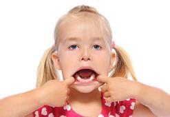 Çocuklar diş hekiminden korkmayacak