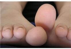 Tırnak mantarı tedavisinden sonra nelere dikkat edilmelidir