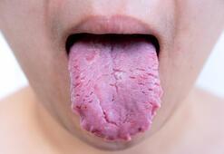 Dil yarası neden olur