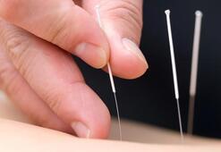 İnfertilite tedavisinde akupunktur mucizesi
