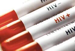 HIV ameliyatında 150 liralık  eldiven skandalı