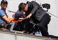 Tom Cruise bileğini kırmış