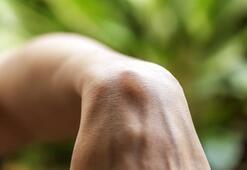 Hızlı büyüyen yağ bezeleri tehlikeli midir