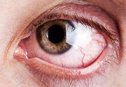 Gözdeki kırmızılığın sebebi nedir