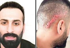 Saç ekimi için gitti, kafasında oluşanı görünce şok oldu