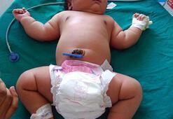 Dünyanın en kilolu kız çocuğu doğdu
