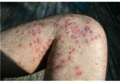 Behçet hastalığı en sık hangi yaşlarda görülür