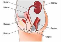 Rahim kanseri türleri nelerdir