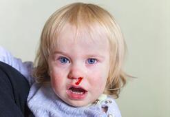 Çocuğumun burnu neden kanıyor