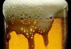 Bira böbrek taşını engellemez