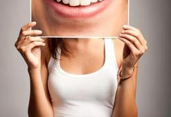 Eksik diş hem şişmanlatıyor hem de psikolojiyi bozuyor