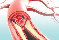 Ayak damar tıkanıklığı hayati risk taşıyabilir
