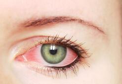 Göz kuruluğu neden olur
