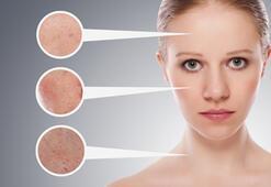 Fraksiyonel lazer ile cildiniz %80 daha sıkı