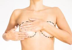 Göğüs büyütme estetiği