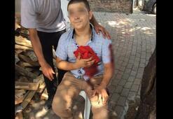 Bursa'da madde bağımlısı dehşet saçtı: 1 ölü, 2 yaralı