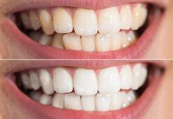 En sağlıklı diş beyazlama yöntemi nedir