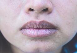 Kışın oluşan dudak çatlaklarını engellemek mümkün