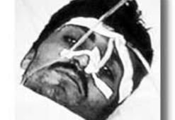 Yaralı PKKlıya Mehmetçik kanı