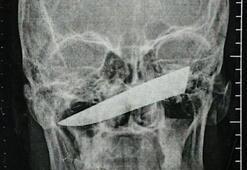 4 gün kafasında bıçakla gezdi